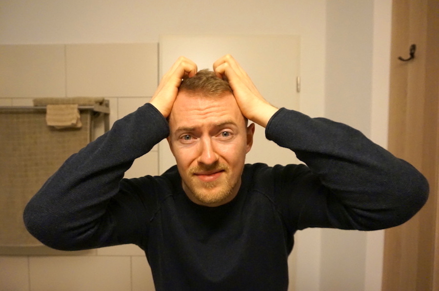 juckende Kopfhaut